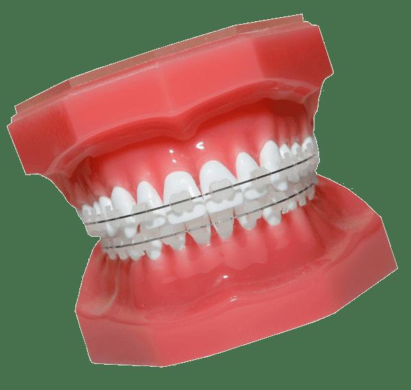 Ortodoncia invisible en Barcelona España